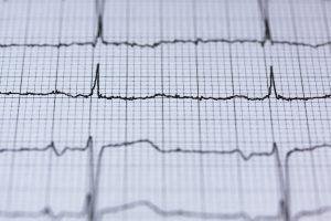 Immagine di un elettrocardiogramma medico