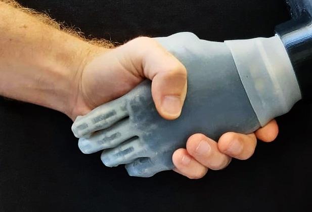 Softhand Pro, la mano protesica sviluppata da IIT e centro Piaggio Unipi